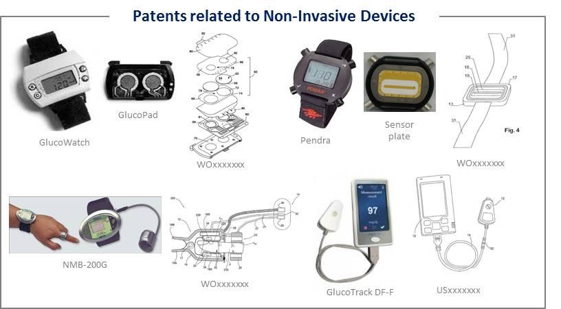 Non-Invasive-Glucose-Monitoring-img1